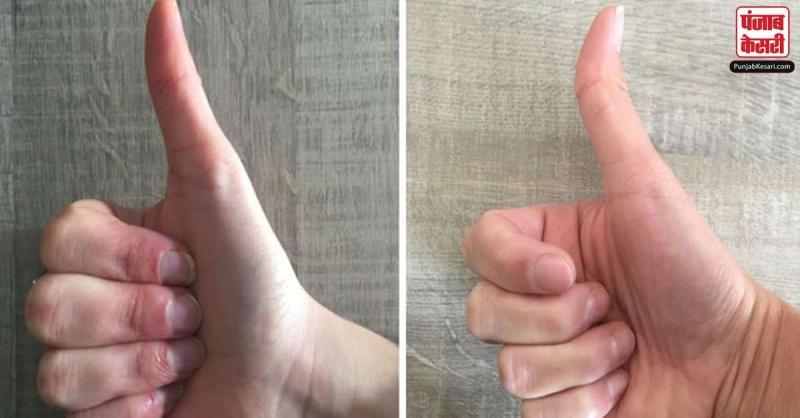 हस्तरेखा ज्योतिष: जानें अंगूठे के आकार से अपना भविष्य, साथ ही जानिए बुद्धिमान और कामयाब आप कितने होंगे