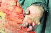 Unfinished business on the leprosy front