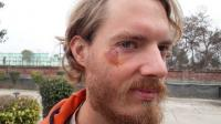 Dutch cyclist injured in mishap, cops fail to act