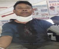 थाने के शौचालय में जाकर नेपाली युवक ने ब्लेड से काटी गर्दन, पुलिसकर्मियों में मचा हड़कंप