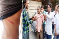प्रवासी ने बीच बाजार युवक पर किया चाकू से हमला
