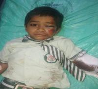 सड़क हादसे में एक बच्चे का टूटा हाथ, 2 बाल-बाल बचे