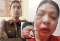 IPS पर पत्नी ने दर्ज कराया दहेज का मुकदमा, 5 करोड़ रुपये के लिए शारीरिक उत्पीड़न करने का आरोप