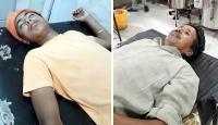 छिपकली वाली जहरीली चाय पीने से बाप-बेटा पहुंचे अस्पताल