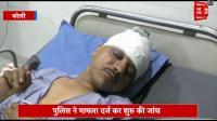 अवैध वसूली का विरोध करने पर पत्रकार पर हमला, लाठी डंडो और चाकू से किया घायल