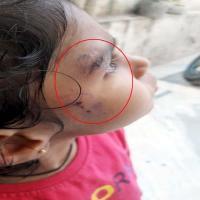 महिला पी.जी. में घुसे बंदर, 7 साल की मासूम को नोच डाला