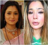 टीवी एक्ट्रेस सारा खान ने करवाई लिप सर्जरी, फैन्स ने खूब किया ट्रोल
