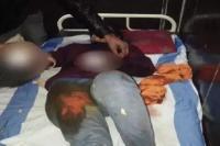 बदमाशों ने लड़की पर किया तलवार से हमला, काटे दोनों हाथ
