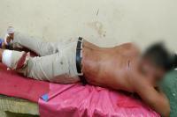 दिन-दिहाड़े गुंडागर्दी, युवक पर तेजधार हथियारों से हमला